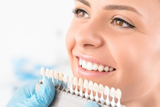 woman smiling porcelain veneers