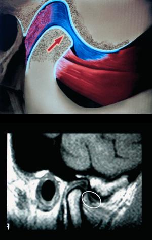Diagnosing TMJ Illustration