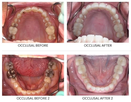 occlusal before after